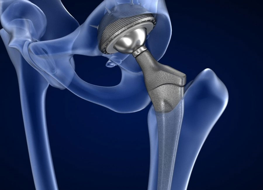 Knee, Shoulder and Hip Replacement Surgeries